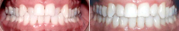 Examples of a crossbite images